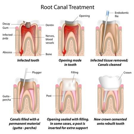 Endodontiska ārstēšana