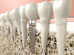 Protezēšana uz implantiem